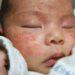 赤ちゃんの乳児湿疹をデイリースキンケアで治してみました!